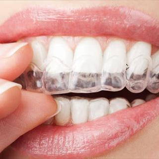 歯ぎしり治療イメージ04