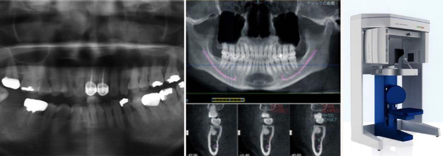 歯の折れ・欠け治療イメージ02