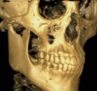 歯科治療への想いイメージ03