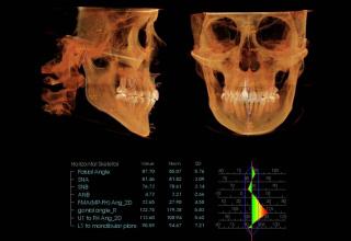 セファロレントゲン(頭部X線規格写真)