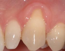 歯周治療・歯肉移植イメージ01