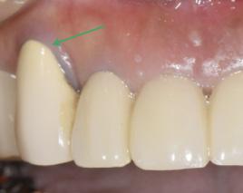 歯周治療・歯肉移植イメージ02