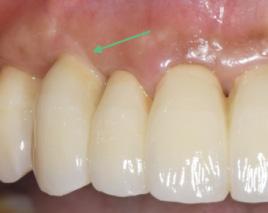 歯周治療・歯肉移植イメージ03