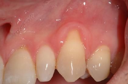 歯肉移植術前