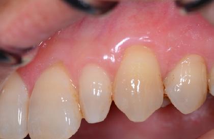歯肉移植術後