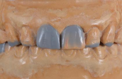 治療の設計図の役割も果たすワックスアップ(口腔模型)を作成し、治療後のイメージを患者さまと確認します。