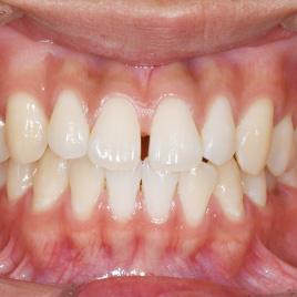 すきっ歯治療イメージ01