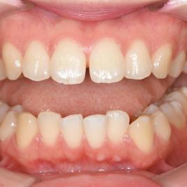 すきっ歯治療イメージ02