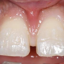 すきっ歯治療イメージ03