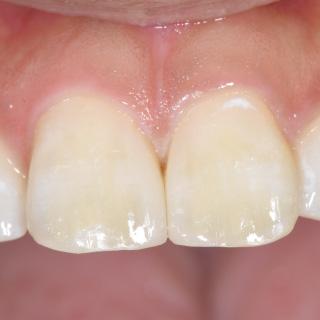 自然な見た目に回復した前歯。治療前は3mm程度の隙間が開いていました。