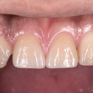 周囲の歯の色調とあわせ、より自然な見た目に回復しました。