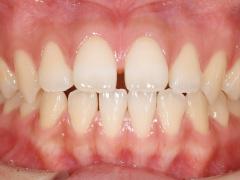 すきっ歯治療